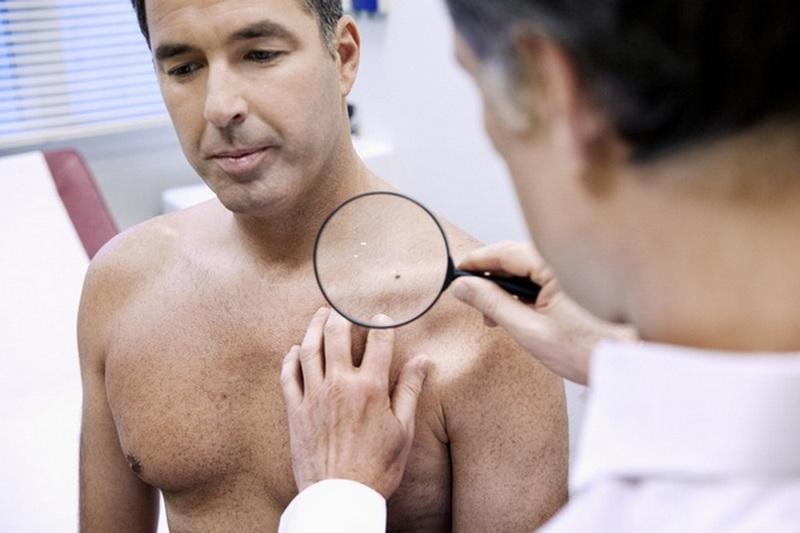 осмотр дерматовенеролога как проходит
