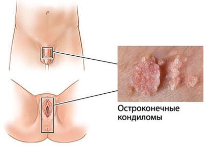 Лечение папиллом