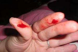 При половом контакте кровь 29