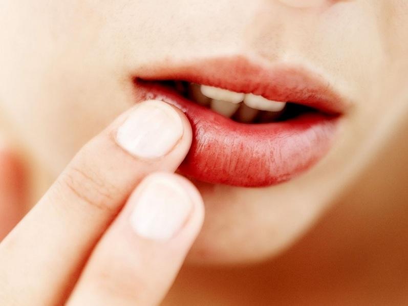 Удаление папилломы на губе 22