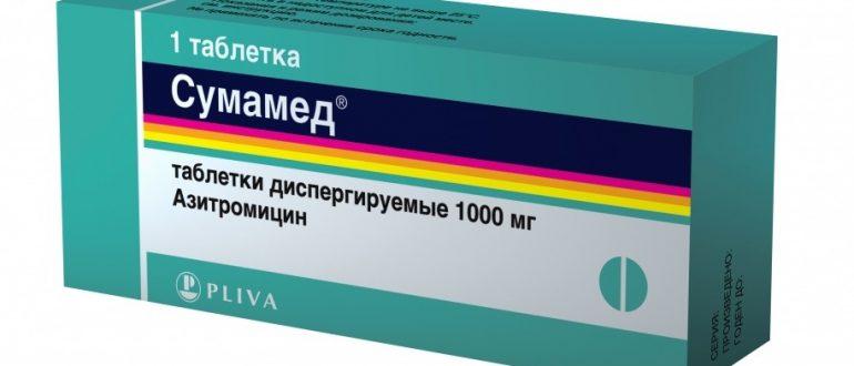 Хламедиоз