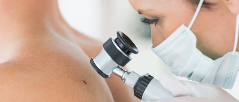 Откуда берутся папилломы на теле у женщин и мужчин? Причины появления и способы устранения