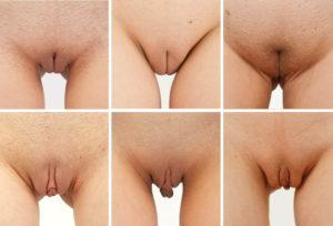 почему темнеют малые половые губы у девочек
