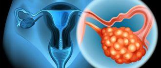 Что такое сальпингоофорит: причины, симптомы, диагностика и лечение