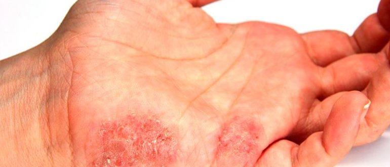 Появление инфекционнойэритразмы