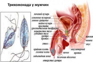 Трихомониаз у мужчин