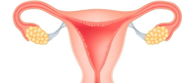 воспалительных заболеваний женских половых органов