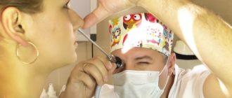 инвертированная папиллома полости носа