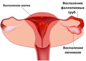 Воспалительные процессы у женщин