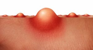 Гнойник на половой губе: причины фурункулов на малых и больших губах