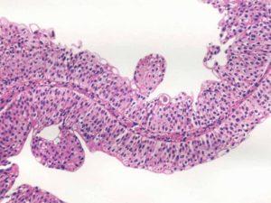 папилломы плоскоклеточная