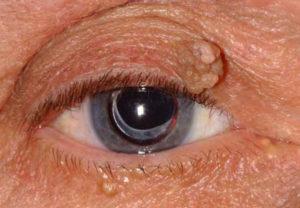папиллома на глазу