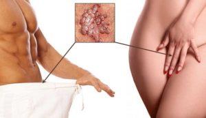 Папилломы на интимных местах у женщин и мужчин: причины, симптомы, чем опасны, диагностика, лечение и методы удаления в зоне бикини
