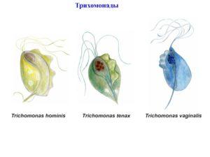 Что такое кишечная трихомонада