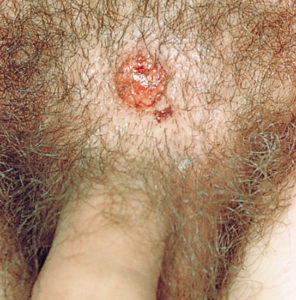 Кожные инфекции на лобке