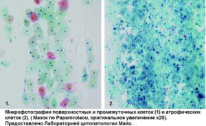 Эстрогенный мазок