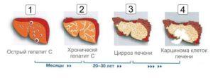 Цирроз печени, как осложнение при ВИЧ-инфекции