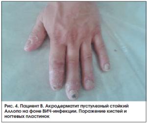 изменение ногтей на фоне вич