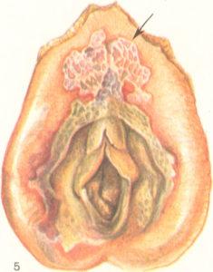 Дифтерия половых органов