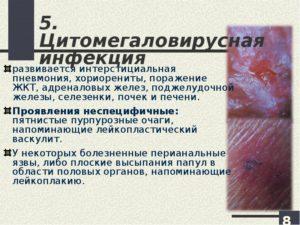 Цитомегаловирус при ВИЧ