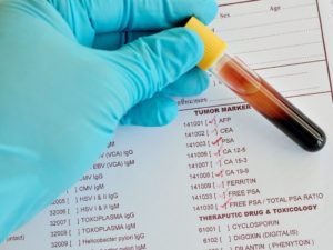 Клинический анализ крови у человека