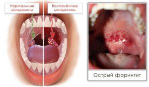 Хламидийный фарингит симптом